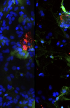 In mouse neurons deficient in the membrane protein TMEM175 (right panel), researchers found damage to lysosomes (green) and a build-up of alpha-synuclein (red), clumps of which are implicated in Parkinson's disease pathology. (Image: Courtesy of the Ren laboratory)